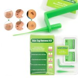 Mrico Skin Tags Warts Remover Kit Remove Warts Skin Tag Body Skin Treatment Face Skin Tag Removal Acne Remover