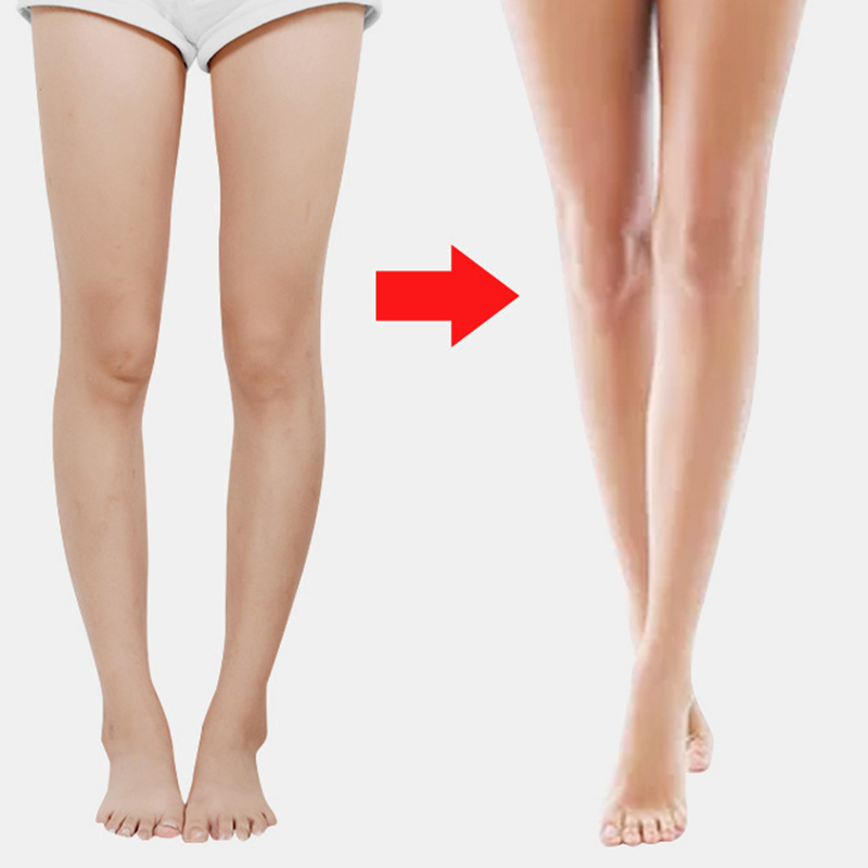 Children Adult Leg Correction Belt O-leg X-leg Straight Leg Correcter Device Beautiful Leg Belt